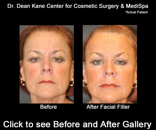 Surgical facial rejuvenation