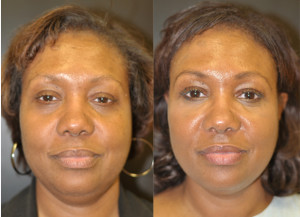 Injectable Fillers Baltimore Maryland