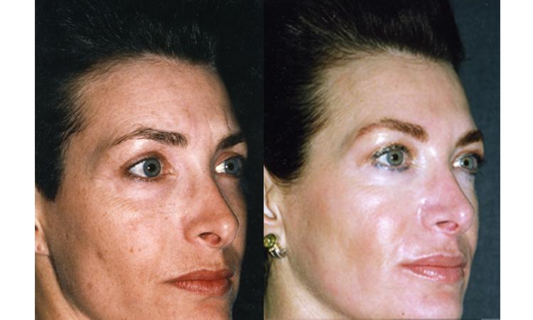 3 Step Skin Program Dean P Kane Md Facs Lauri P