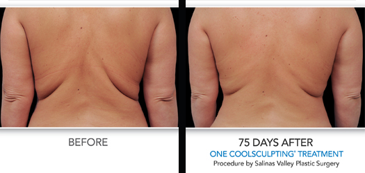 Diet Exercise And Coolsculpting Cool Summer Slimming Dean P