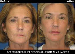 Exciting Revolutionary ClearLift: The Laser FaceLift | Dean P  Kane