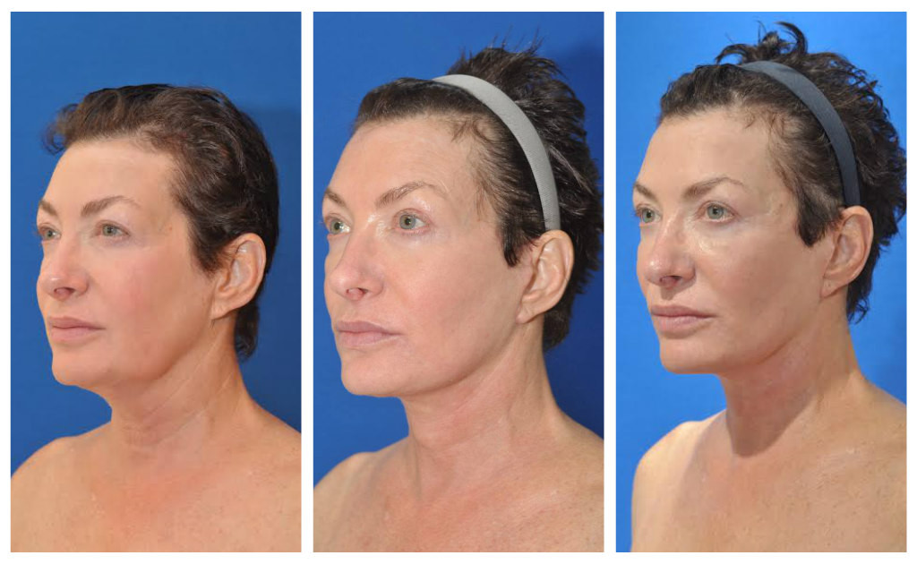 lauri prefacelift post facelift 4 months 1 yr