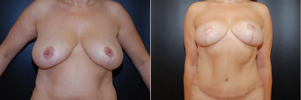 Traditional Breast Lift