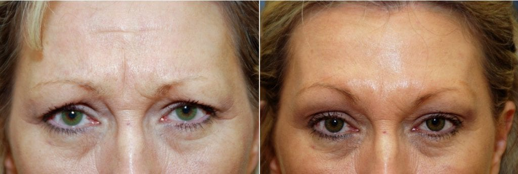 Botox Before & After #3