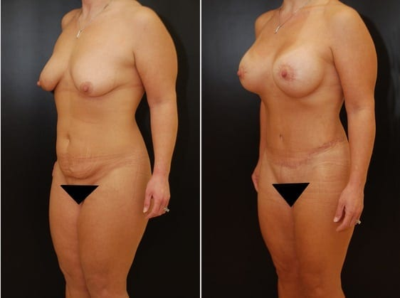 Tummy Tuck:Case 12