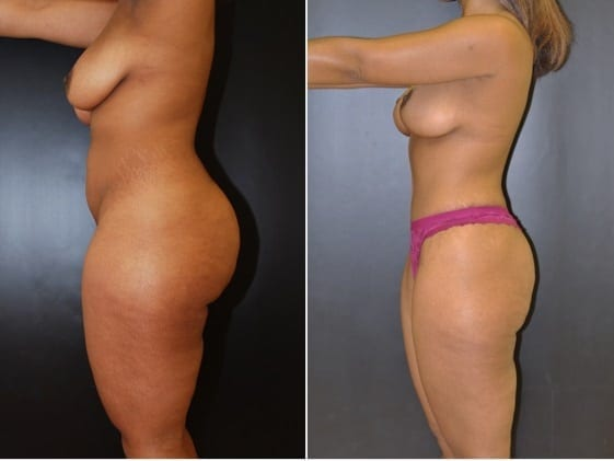 Tummy Tuck: with Liposuction, Breast Lift