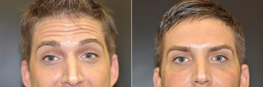 Botox Before & After #7