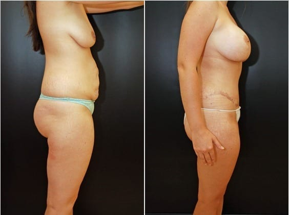 Breast Lift with Saline Implants and Tummy Tuck