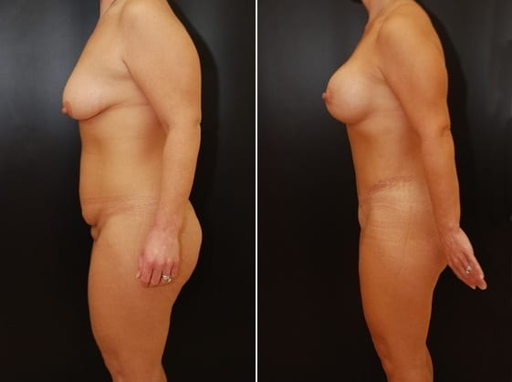Tummy Tuck, Donut Breast Lift with Silicone Gel Implants