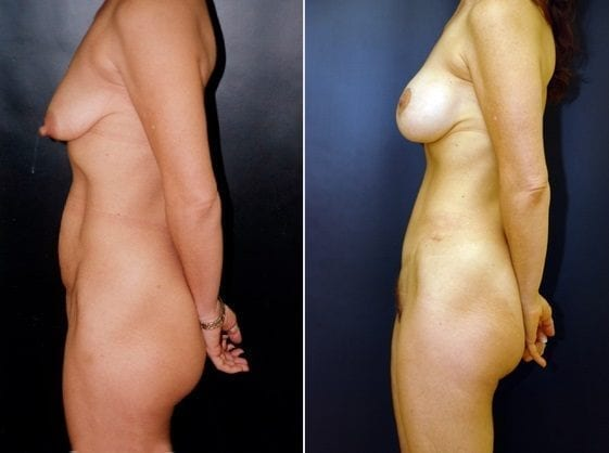 Tummy Tuck, Donut Breast Lift