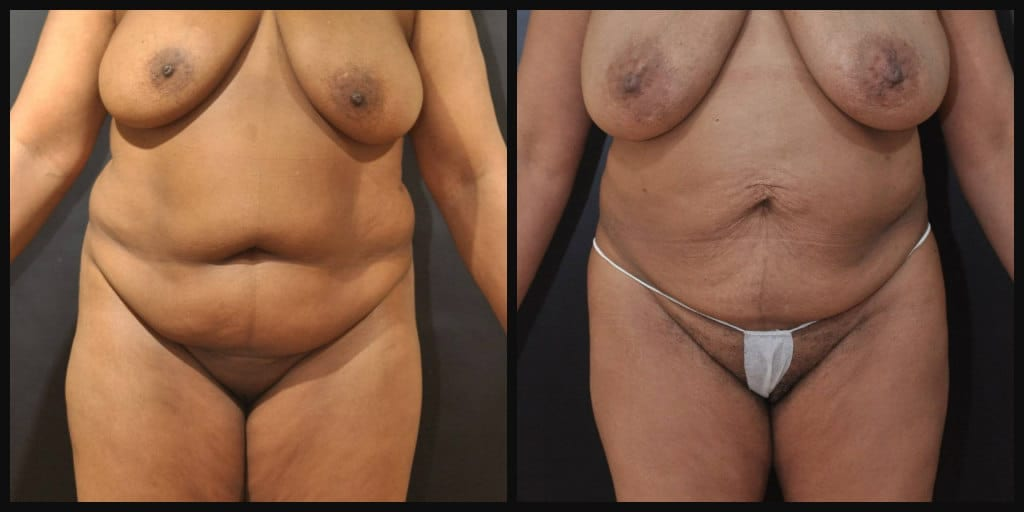Tummy Tuck with Lipo