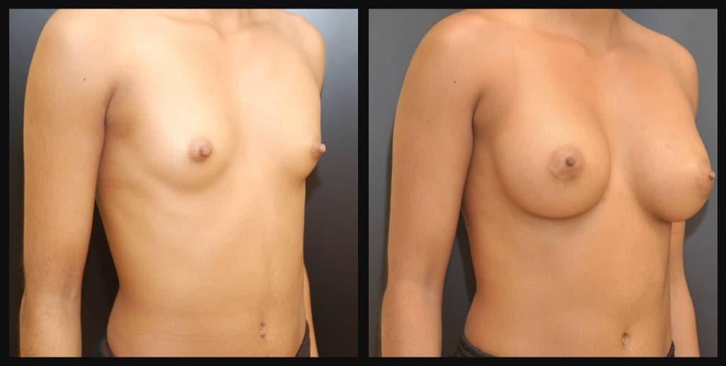breast enhancement lauri plight director