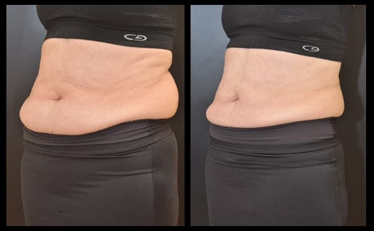 How to reduce v fat photo 7