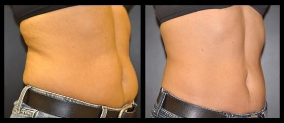 CoolSculpting Before & After Images Baltimore MD   Pikesville