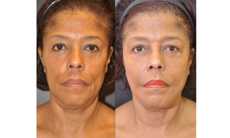 Traditional Face and Neck Lift, ZO Skin Health