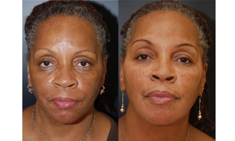Fillers Before & After