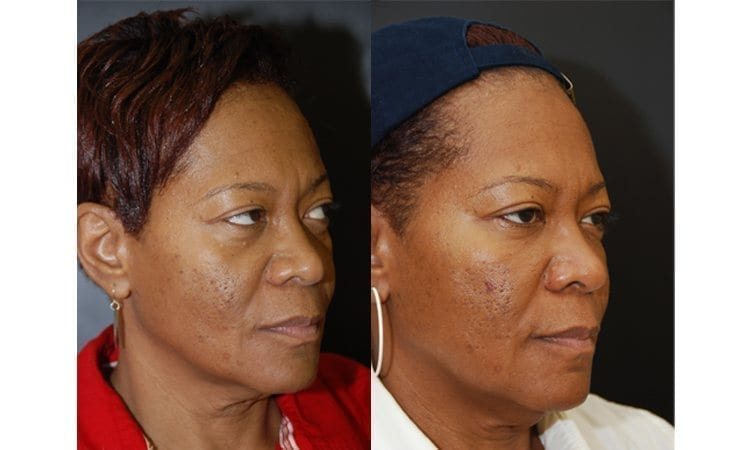 Fillers Lower Lids