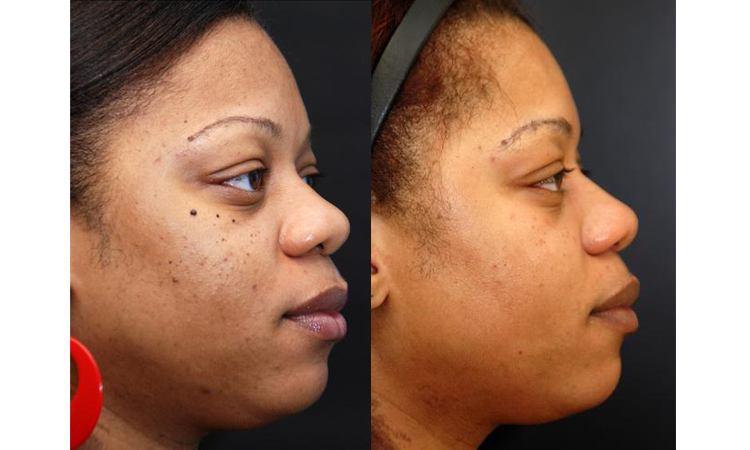 Dr. Obagi ZO Skin Health