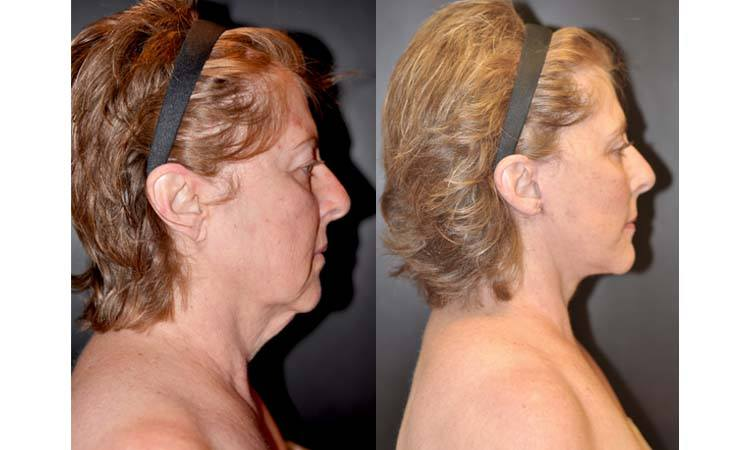 Traditional Face and Neck Lift