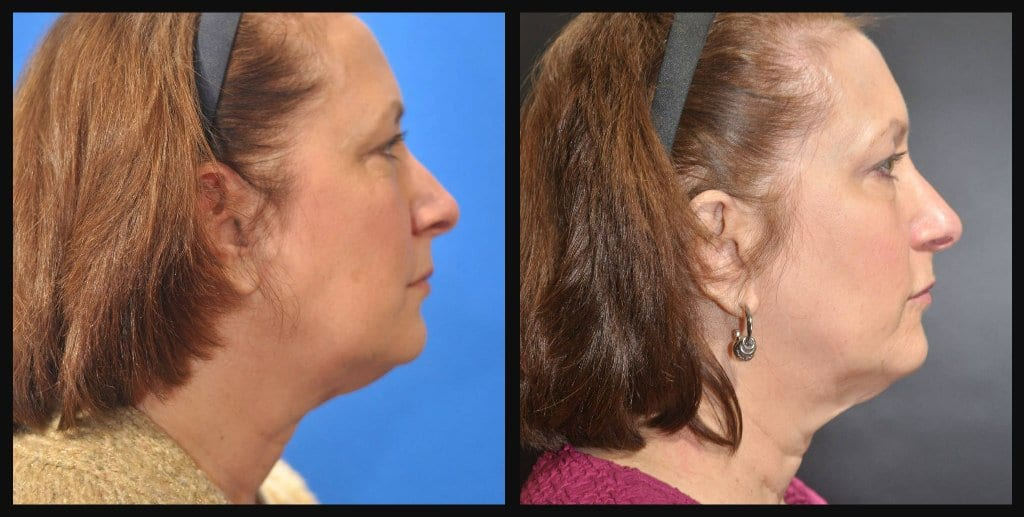 CoolSculpting of Neck
