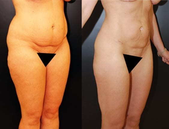 Liposuction, Breast Augmentation & Lift
