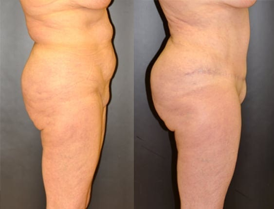 Tummy Tuck and Liposuction