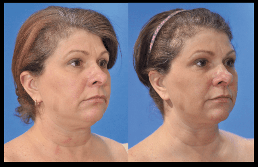CoolSculpting for the Neck Baltimore MD | Dean P. Kane, MD and Lauri P. Kane,ScD