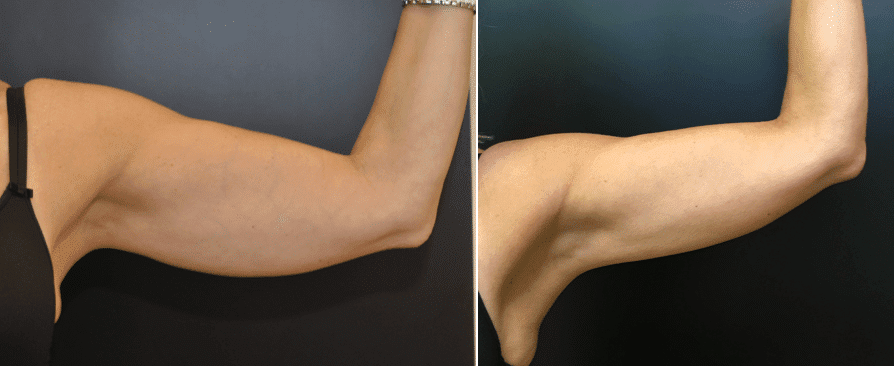 CoolSculpting Before & After Cases Baltimore MD | Pikesville