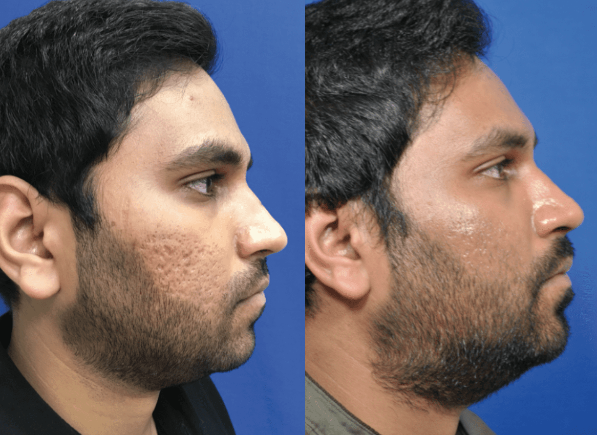Skincare Patient Before and After photos