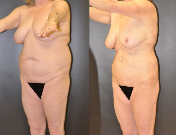 Liposuction of the Abdomen