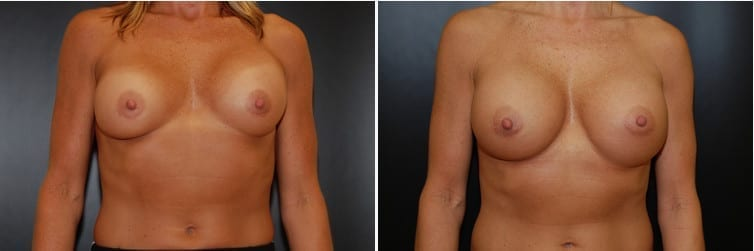 Breast Revision