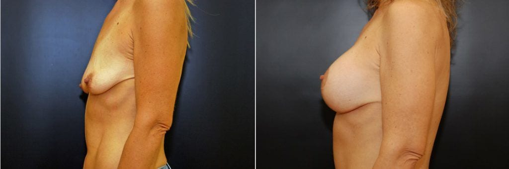 Breast Aug and Lift
