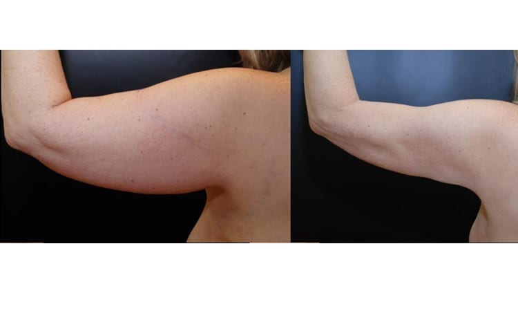 Arms Liposuction Tucks Brachioplasty Dean P Kane Md