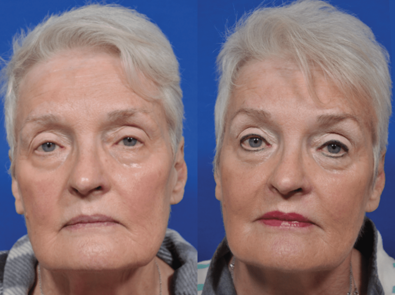 Sculptra Patient Before and After photos