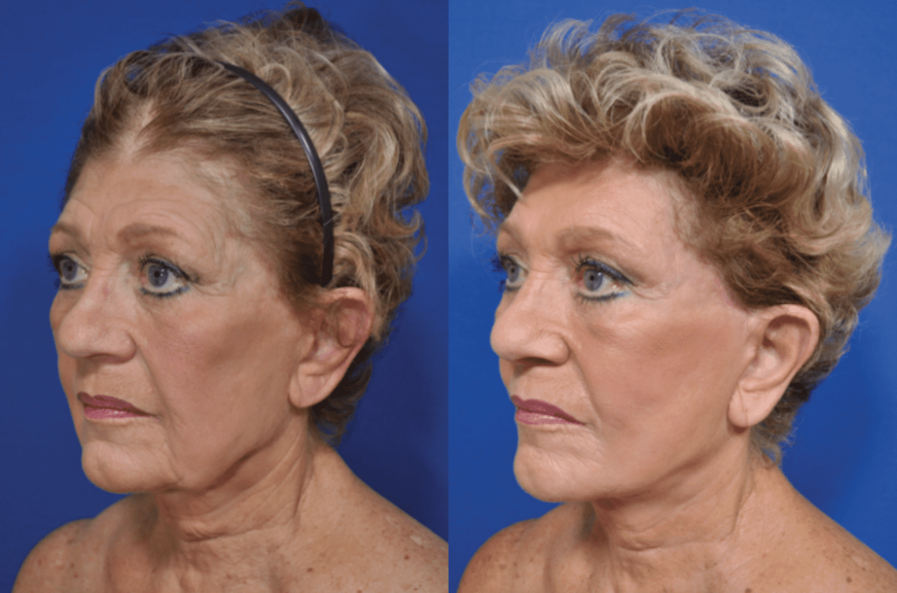 Face /Neck Lift patient 11 11 2019
