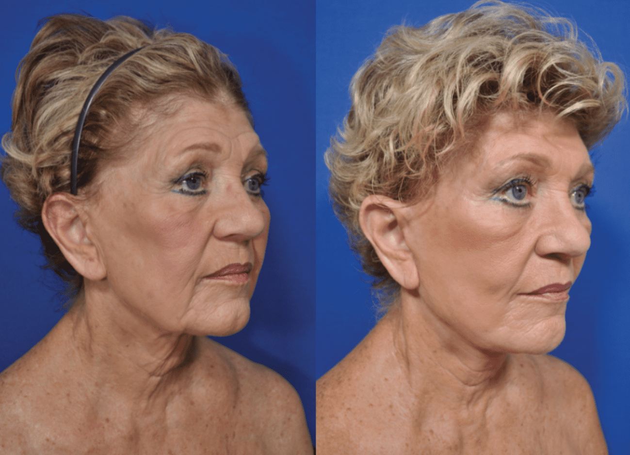 Face and Neck Lift Patient Before and After photos