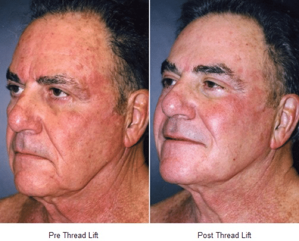 InstaLift Blog: The Perfect Non-Surgical Alternative to a Facelift