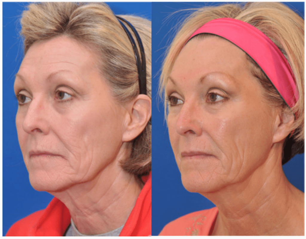 ipl Baltimore maryland photo facial