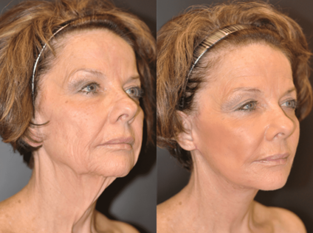 Face and Neck Baltimore MD | Dean P. Kane, MD and Lauri P. Kane,ScD