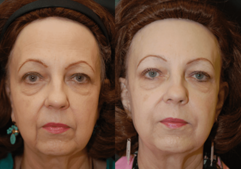 Restylane Defyne for Nasal Folds and Marionette Lines