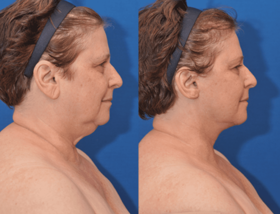 Neck Lift in Baltimore Maryland | Dr. Dean Kane