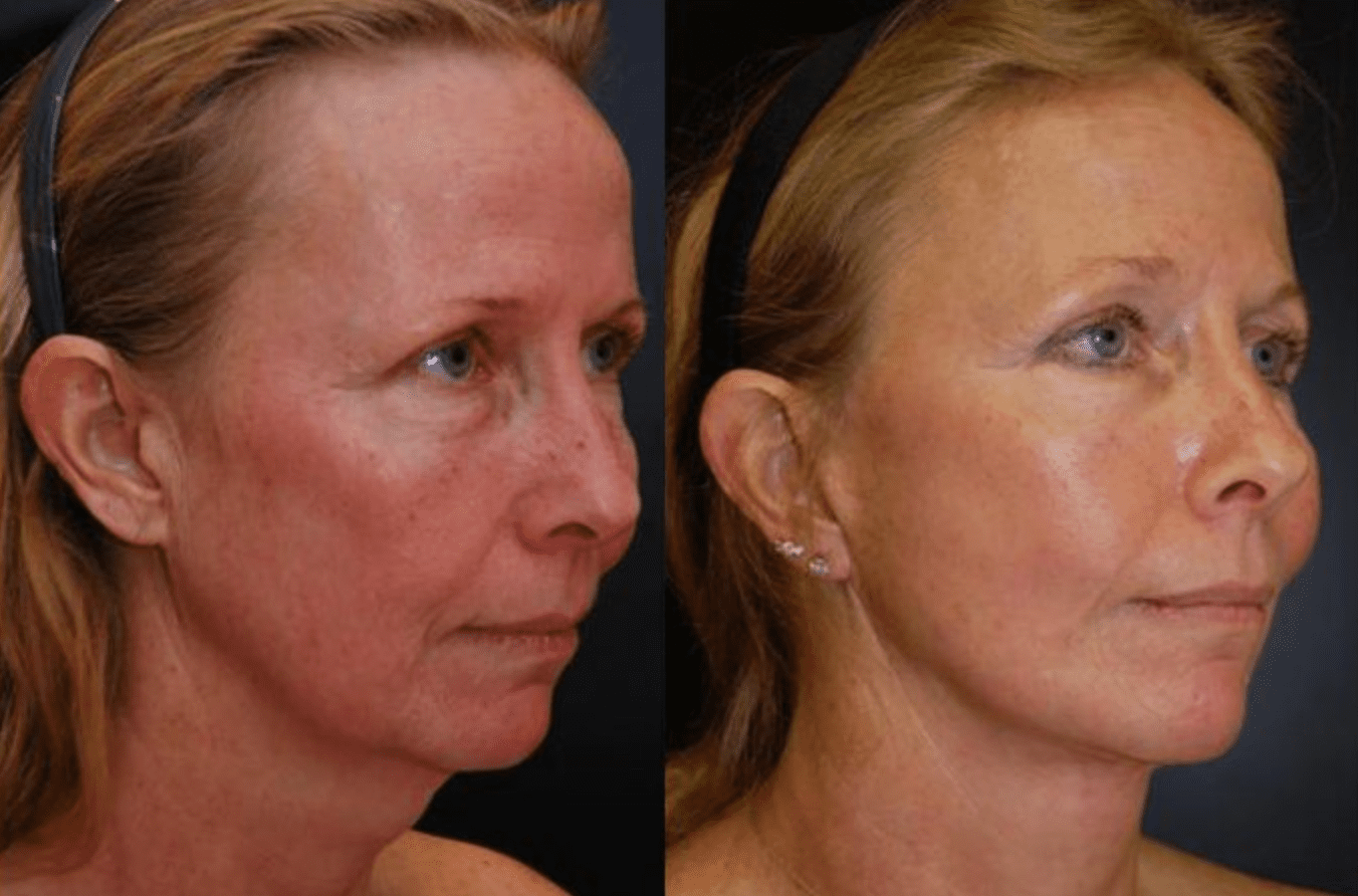 Mini Facelift Baltimore MD | Before & After