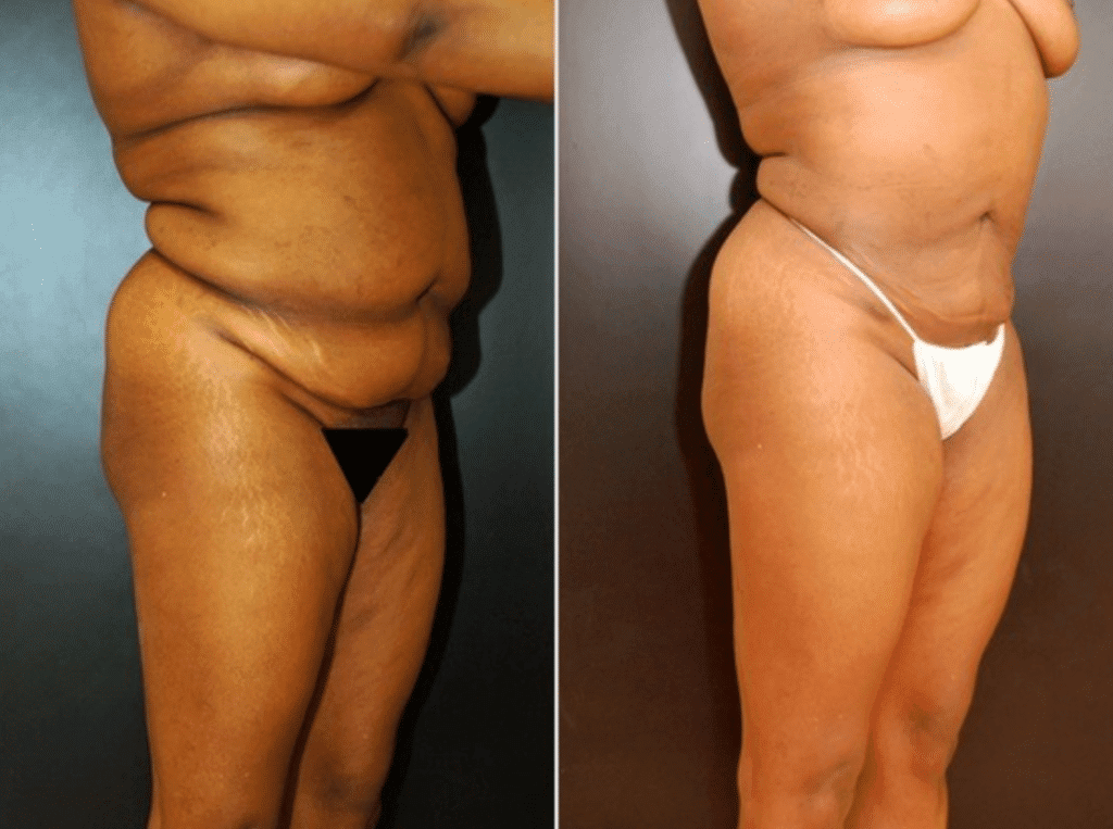 Liposuction in Baltimore Maryland | Dr. Dean Kane