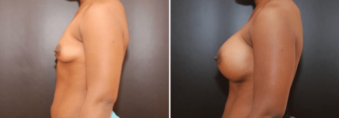 Breast Augmentation | Dr. Dean P. Kane, MD, FACS | Baltimore, MD