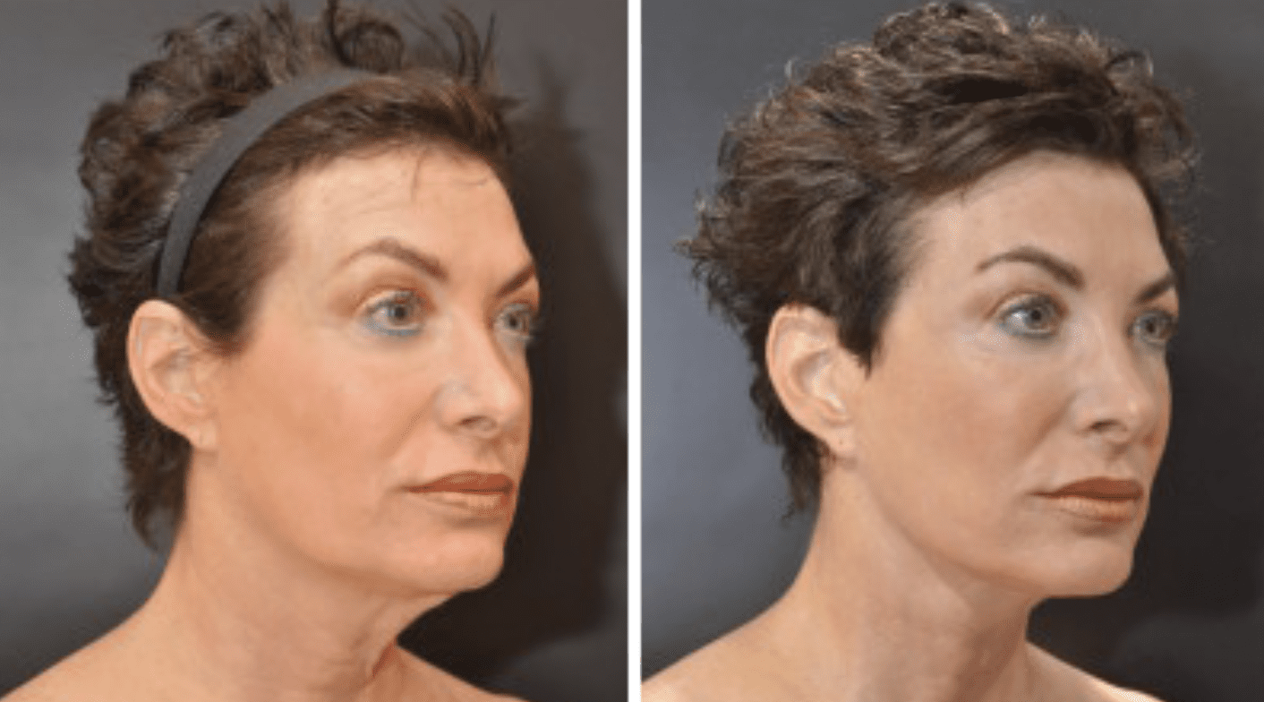 Short-Scar-Facelift