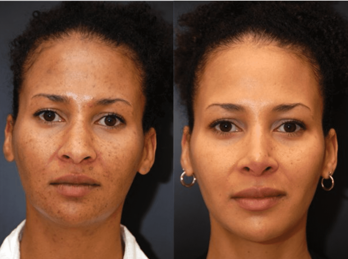 Rhinoplasty | Dean P. Kane, MD, FACS | Baltimore, MD