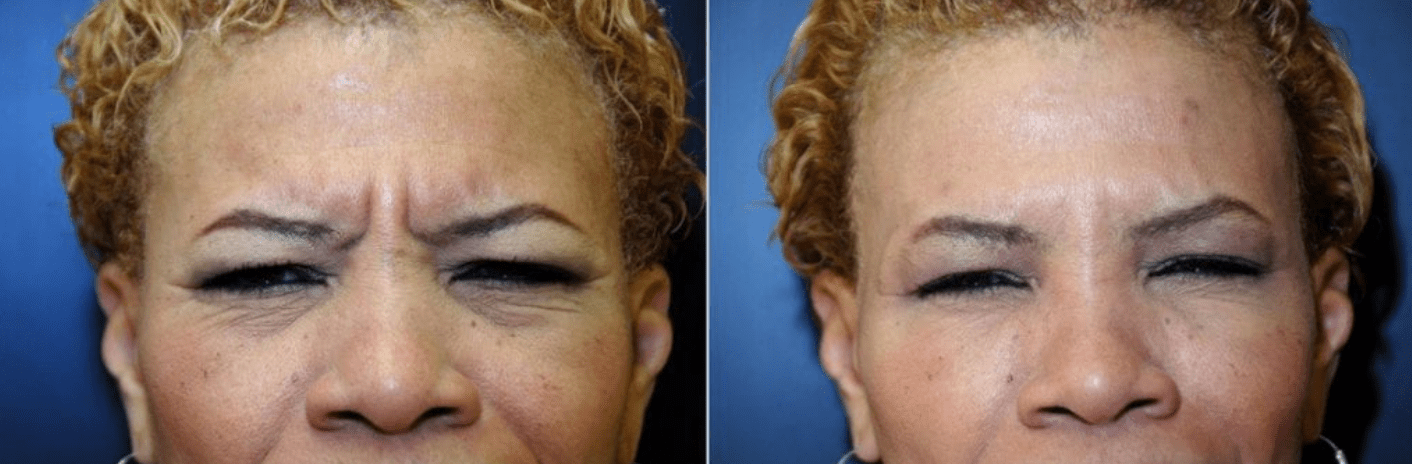 Botox Before & After #1