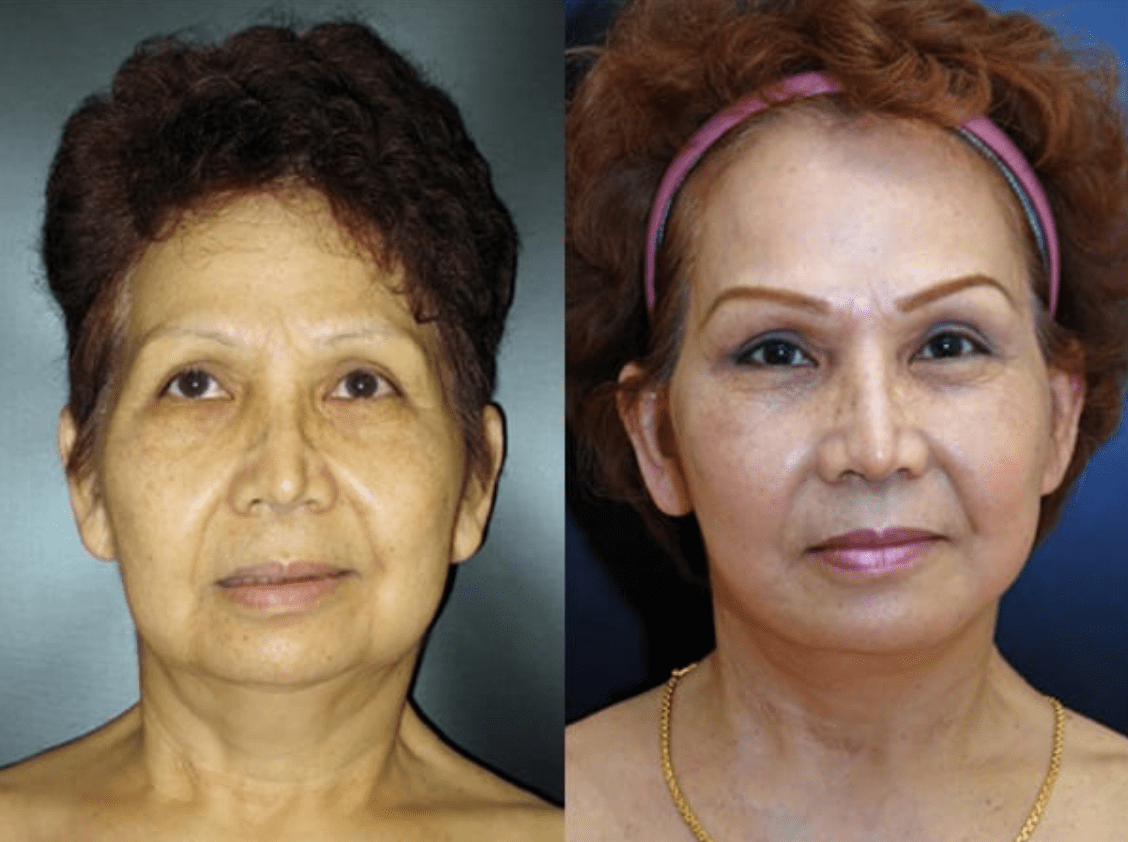 Brow Lift Baltimore MD | Brow Lift Procedure Pikesville