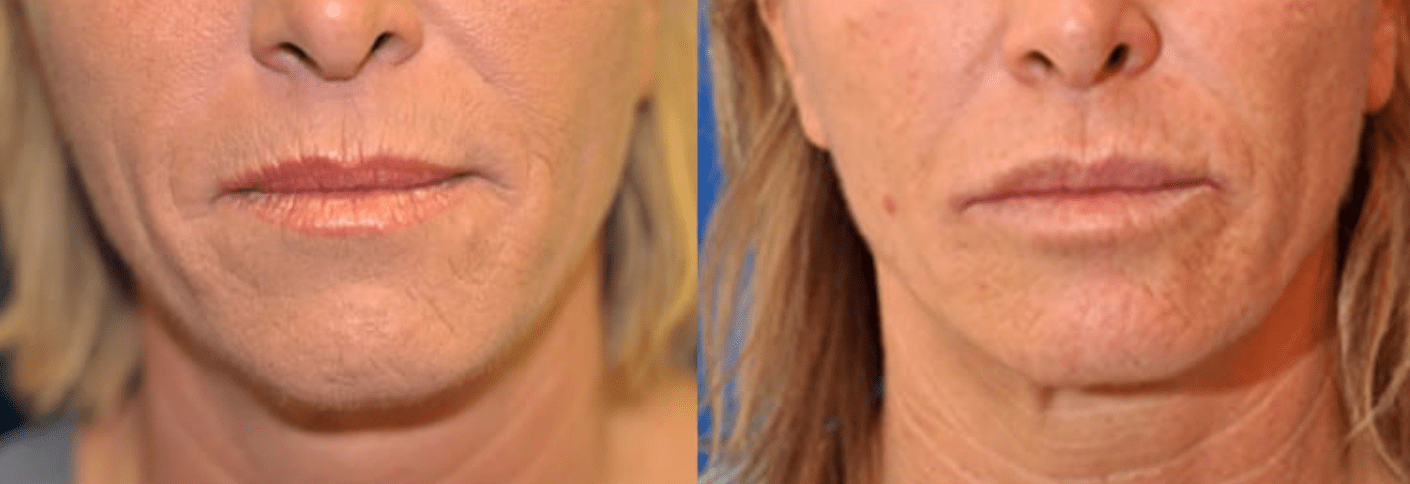Botox Before & After #5