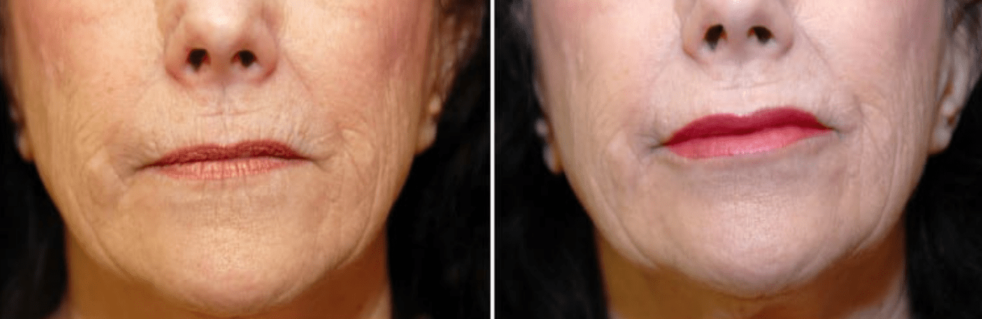 Botox Before & After #6